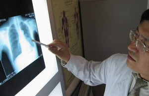 признаки рака легких фото